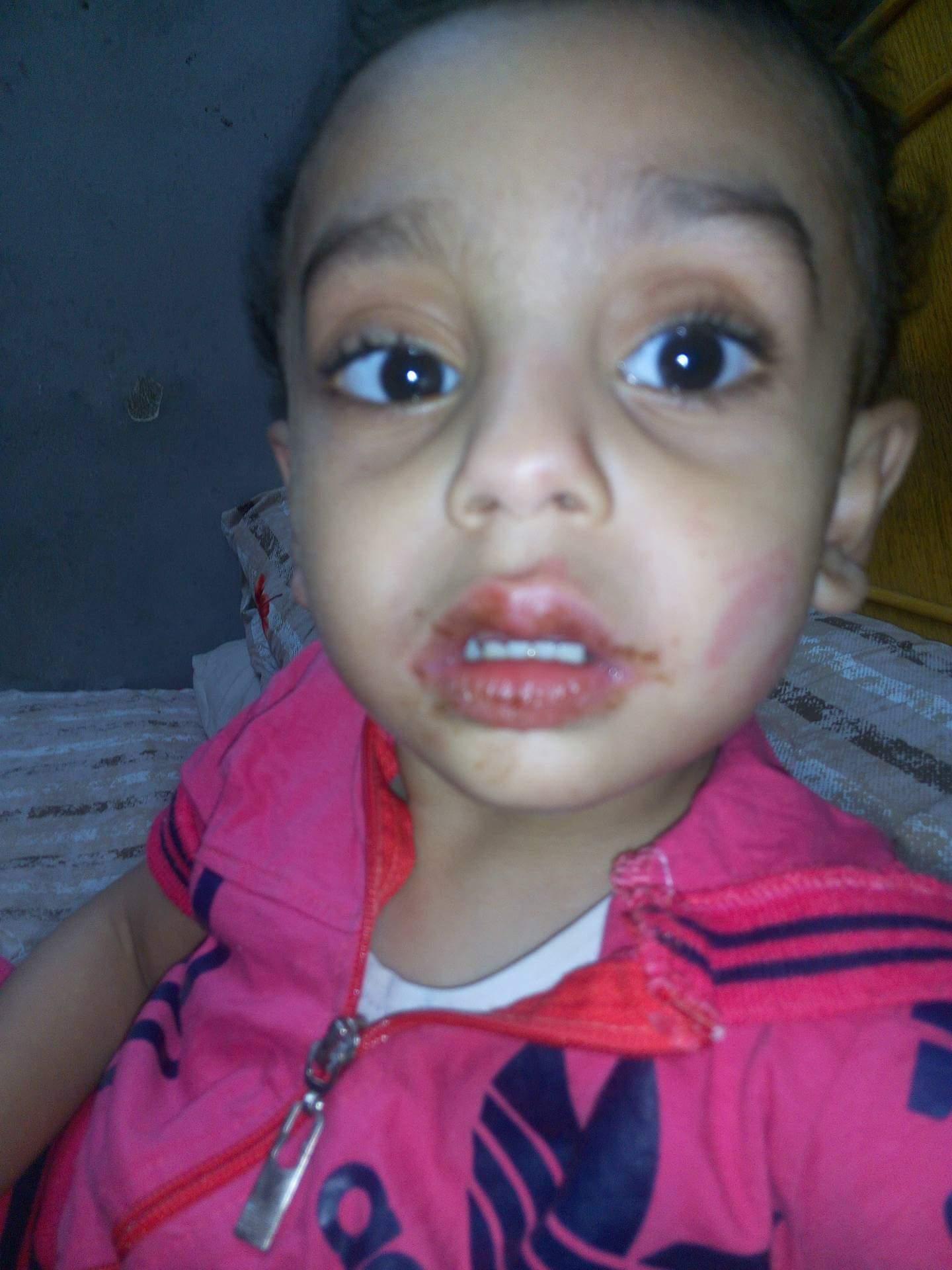3115e322e الكاتب: sayed gamal. بلاغ يتهم صاحبة حضانة بتعذيب طفل وسحلة بالاسماعيلية