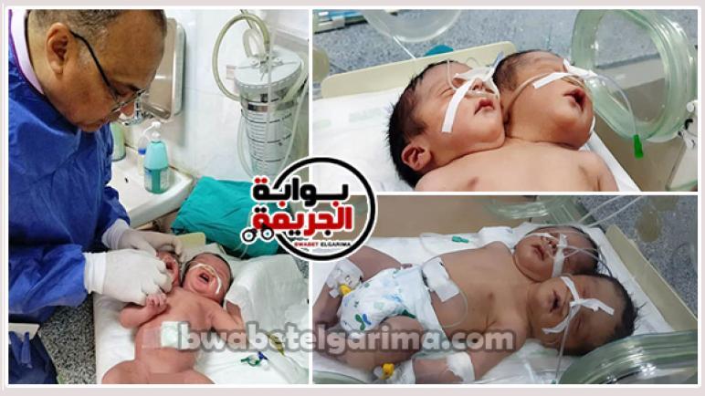 بالصور .. وصول طفل برأسين من أسوان لمستشفى أسيوط الجامعى لتلقى العلاج